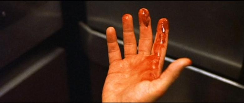 Bloodied hand